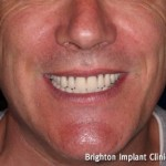 dental implant treatment completed