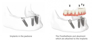 dental implant treatment showing 4 implants supporting a fixed bridge