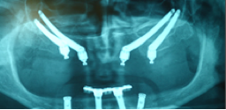 Double zygoma implant treatment