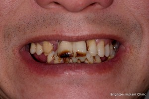 before dental implants treatment
