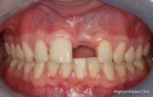 a single dental implant was the most comfortable long term solution for this patient