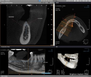 CT scan, lower right premolar extracted before dental implants placed
