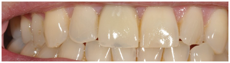 Single Tooth Implant Treatment