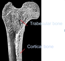 Soft and Hard bone in Implantology