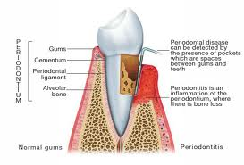 tooth in the supporting bone