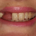 missing teeth before implant treatment