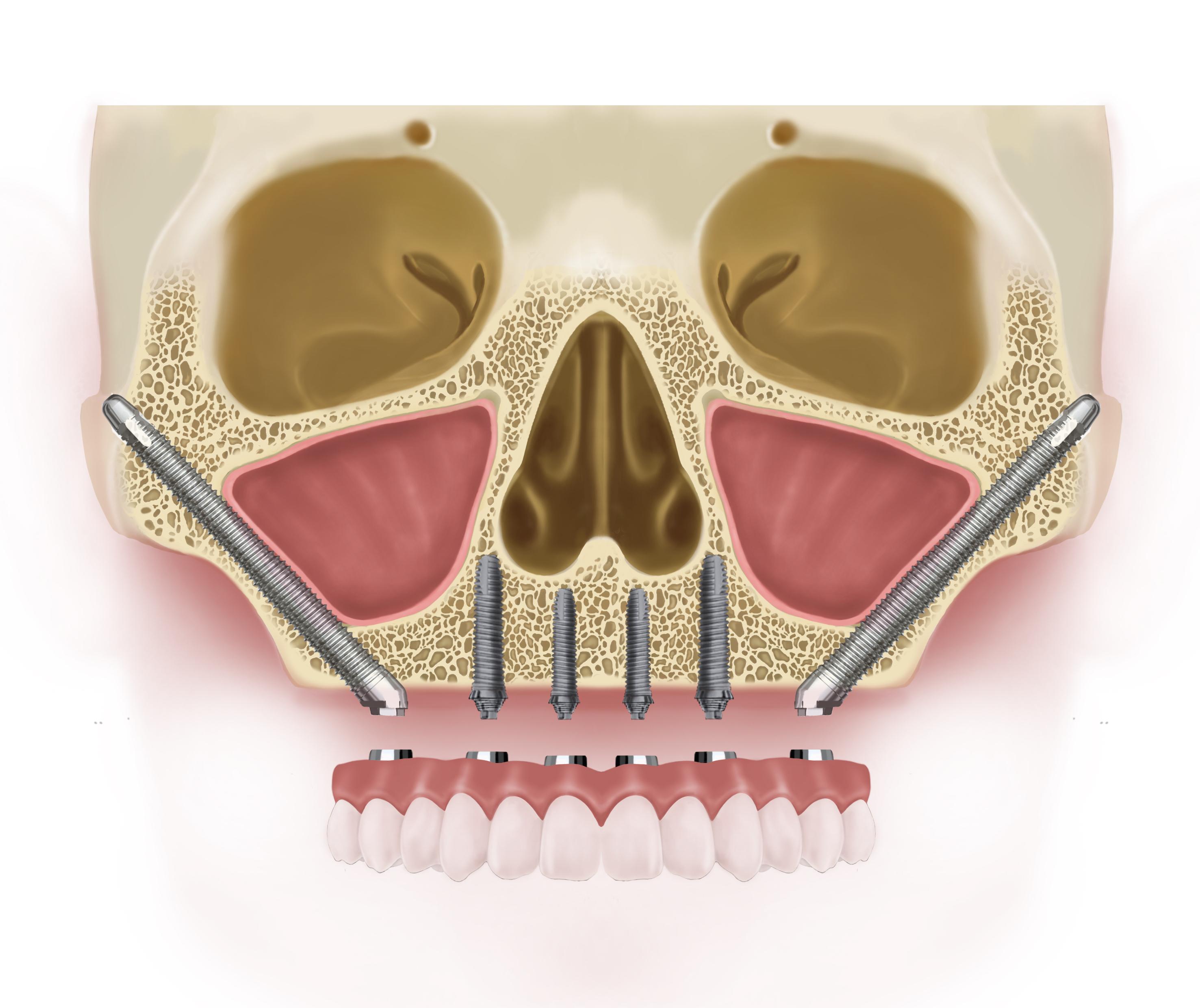 Zygomatic implants