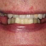 all on 4, brighton implant clinic slide2