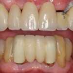 all on 4, brighton implant clinic slide3