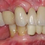 all on 4, brighton implant clinic slide4
