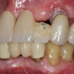 all on 4, brighton implant clinic slide5