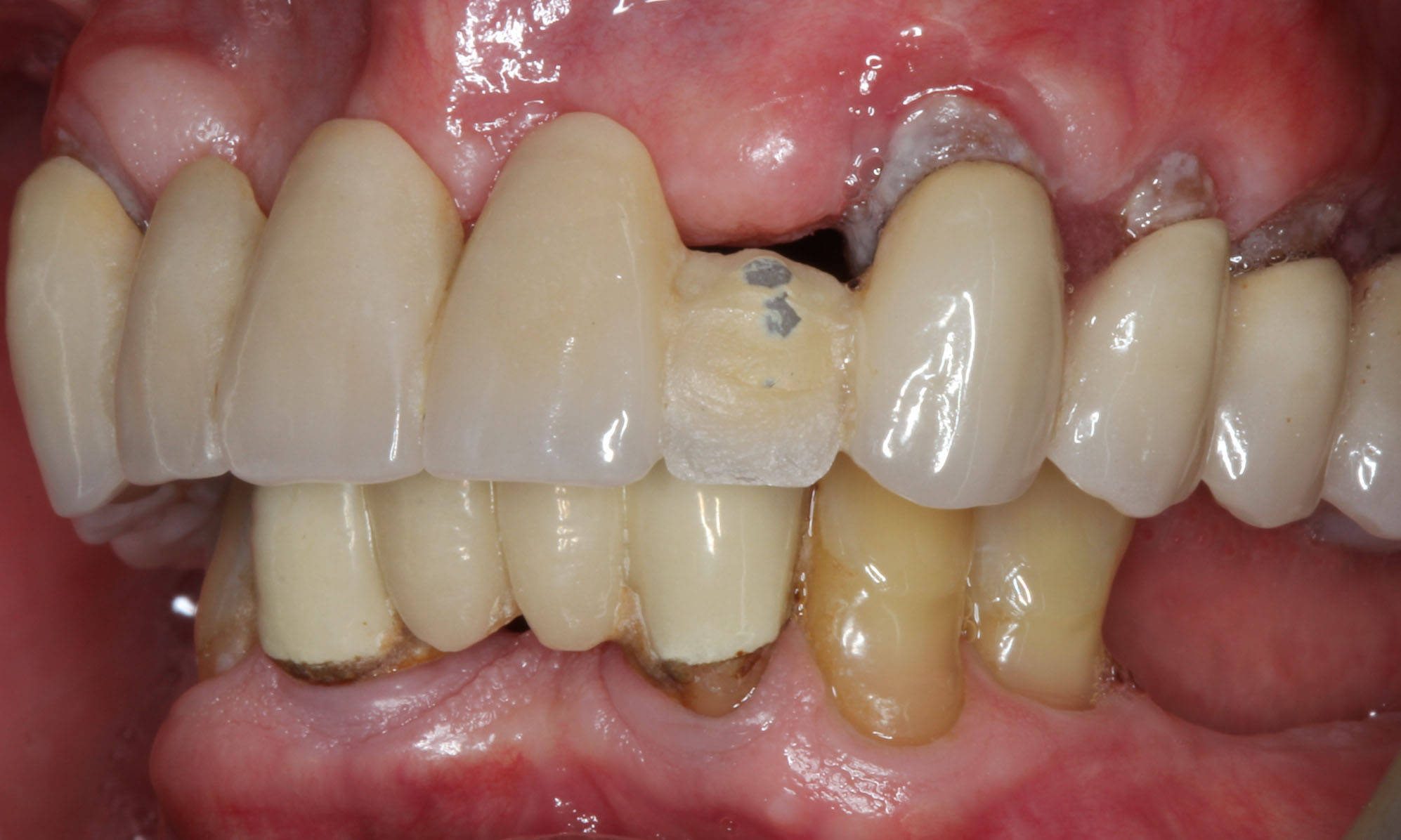 Tooth Ache When Walking Dental Implants