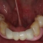 all on 4, brighton implant clinic slide9