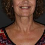 brighton implant clinic new smile3