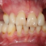 brighton implant clinic new smile5