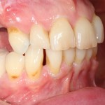 brighton implant clinic new smile6