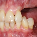 brighton implant clinic new smile7