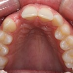 Occlusal view of missing tooth