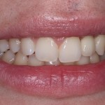 What difference a single tooth implant can make!