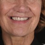 brighton implant clinic new smile18