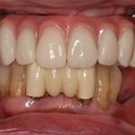 all on 4, brighton implant clinic slide17