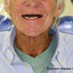 Full upper arch of missing teeth