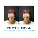 Before teeth on 4 dental implant treatment