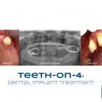 Upper and lower teeth affected by periodontal disease