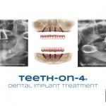 xray showing dental implants