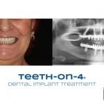 dental implant bridge on 4 implants
