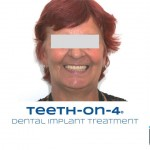 A new smile with dental implants