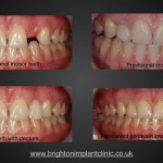 Before and after implant treatment
