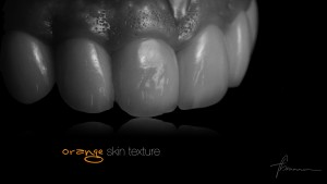 dental photography showing healthy gums and zirconia crowns