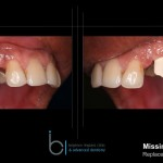 Dental Implants | Brighton Implant Clinic Canine Replacement Step 9