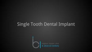 Single tooth dental implant 1 brighton implant clinic