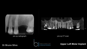 Single tooth dental implant 2 brighton implant clinic