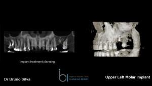 Single tooth dental implant 3 brighton implant clinic