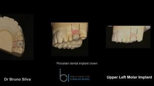 Single tooth dental implant 7 brighton implant clinic