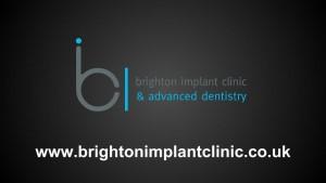 Single tooth dental implant 13 brighton implant clinic