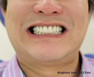 occlusal view of premolar teeth
