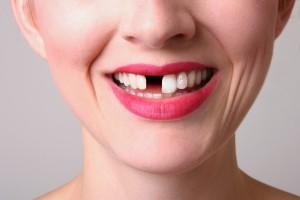 Flossing helps prevent gum disease