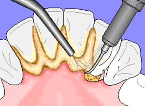 Plaque build-up can lead to tartar