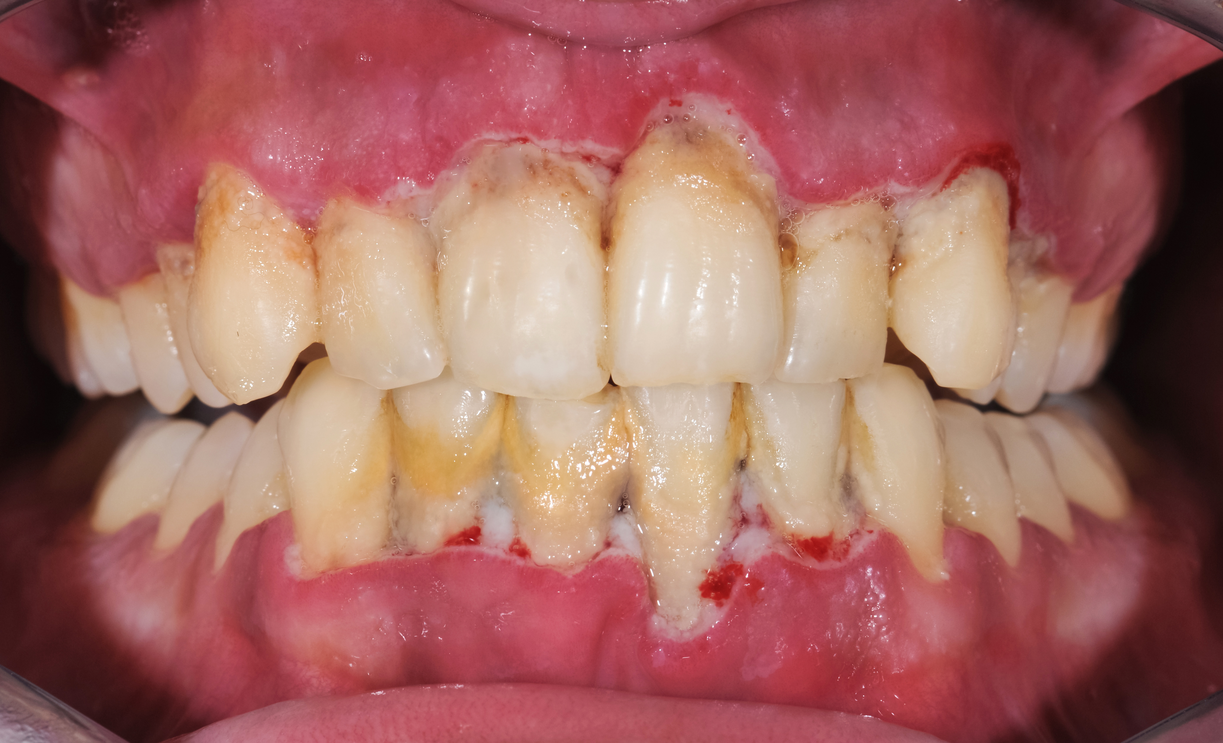 Oral Piercings And Oral Health What You Should Know