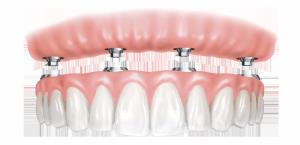dentures-implants-fixed-smaller-e1461662143196-300x145