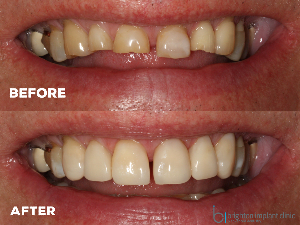 before and after tooth wear