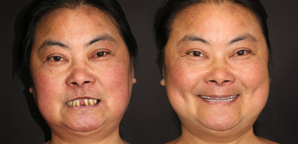Before and After zygomatic dental implants