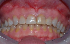 tetracycline effect on natural teeth