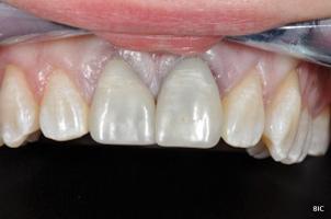 Black Teeth - Discoloured Anterior Tooth