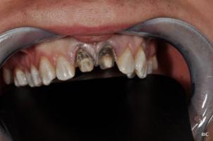 Discoloured Anterior Tooth - Black Teeth