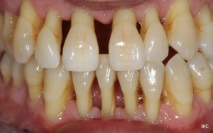advanced gum disease, note the amount of gum recession, these teeth have a very poor prognosis